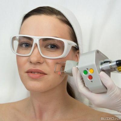 Аппарат для лазерной шлифовки лица